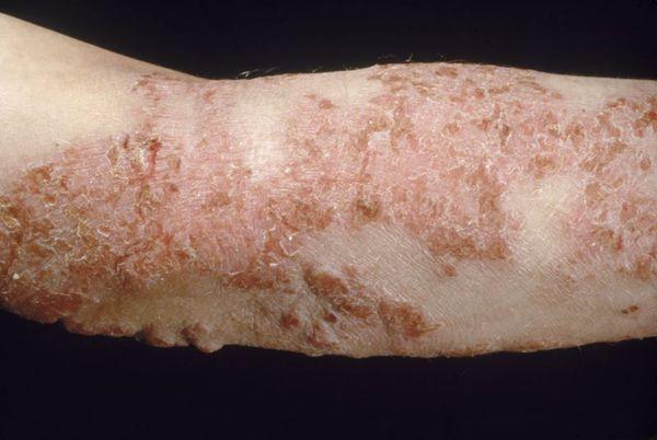Распространённый атопический дерматит