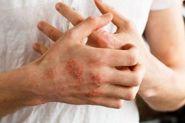 Сыпь и зуд при атопическом дерматите