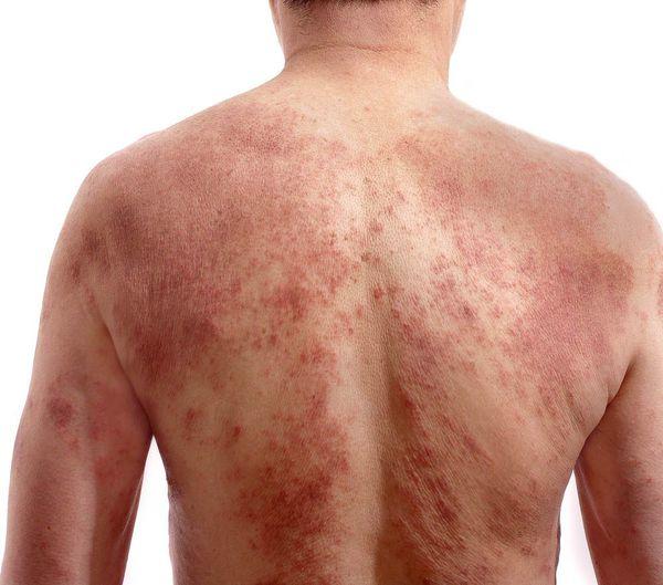 Универсальный атопический дерматит