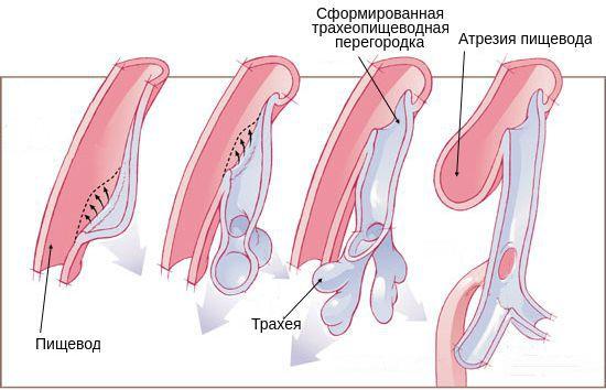 Разделение пищевода и трахеи у эмбриона и формирование атрезии пищевода
