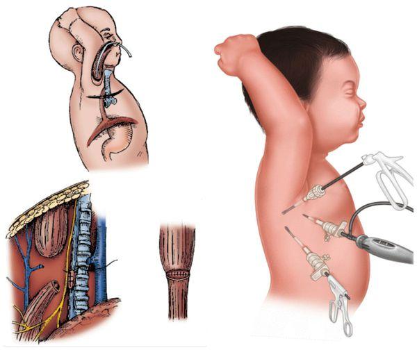 Атрезия пищевода: причины, симптомы и лечение в статье детского ...