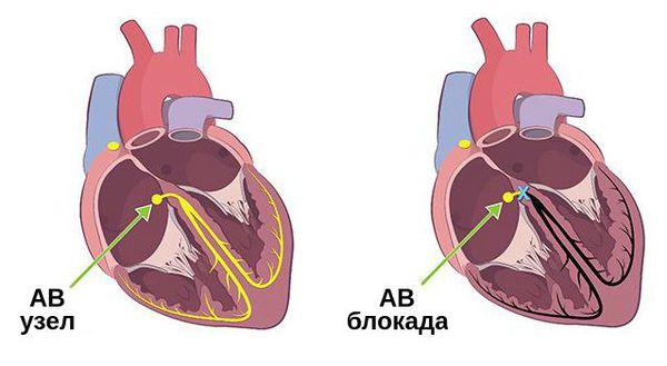 Блокада импульса в АВ узле