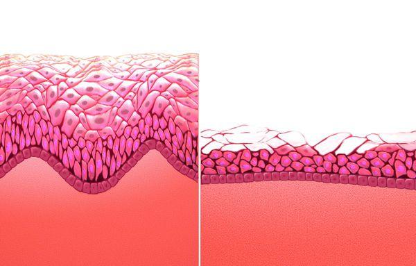 Атрофия тканей влагалища при низком уровне эстрогена