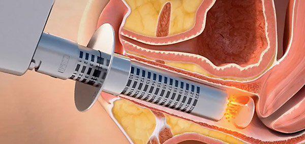 Лечение вагинальной атрофии лазером