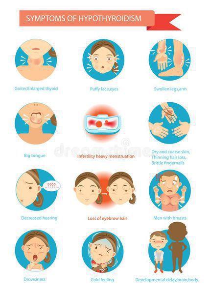 Симптомы и осложнения аутоиммунного тиреоидита