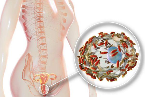 Рост патологических микроорганизмов во влагалище