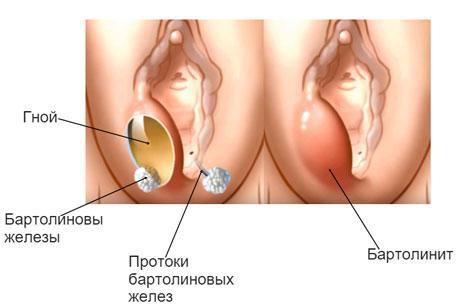 devushku-rakom-porno-foto-starushki-bolshie-polovie-gubi-foto-chelyabinskih-zhenshin