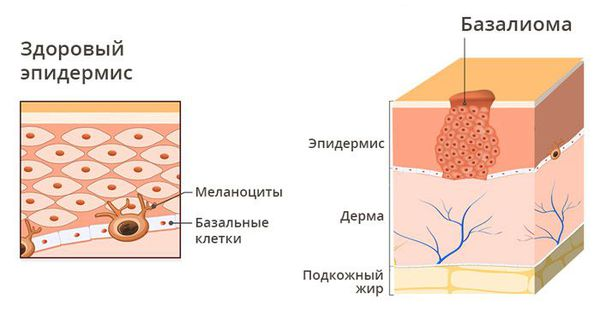 Базальноклеточный рак