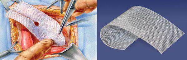 Метод Лихтенштейна с применением сетчатого импланта