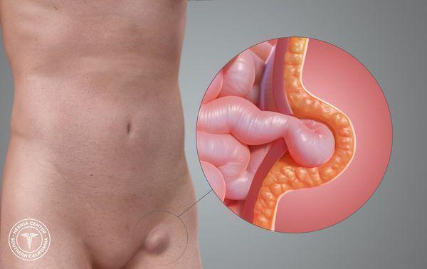 Выход внутренних органов из полости живота на бедро