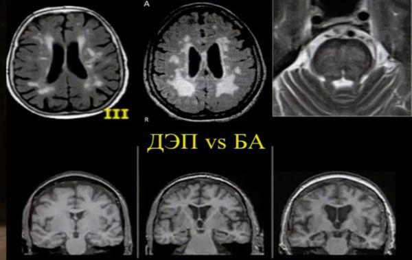 Дисциркуляторная энцефалопатия и болезнь Альцгеймера