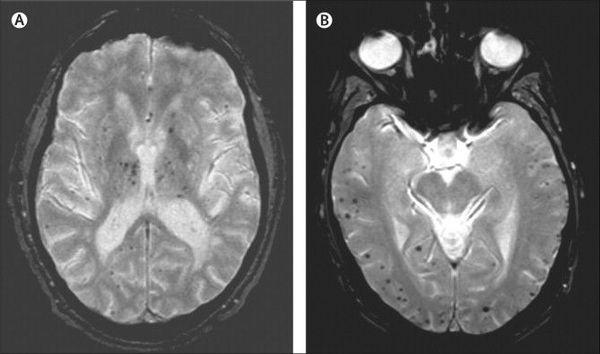 А. Дисциркуляторная энцефалопатия (подкорковые микрокровоизлияния) В. Болезнь Альцгеймера (корковые церебральные микрокровоизлияния)