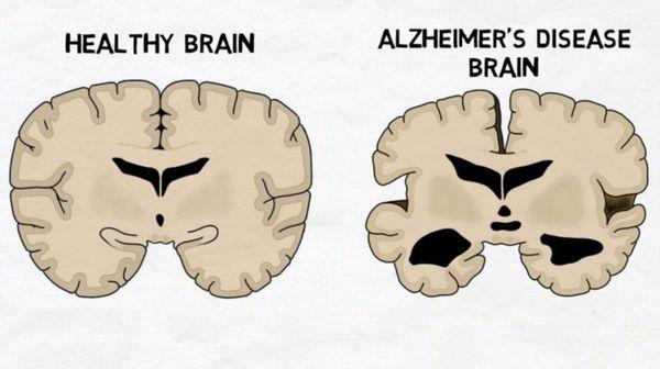 Мозг в норме и при болезни Альцгеймера