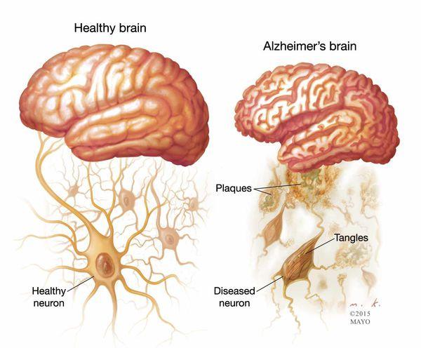 Мозг и нейроны в норме и при болезни Альцгеймера