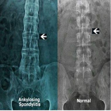 Анкилозирующий спондилоартрит и здоровый позвоночник на рентгенограмме
