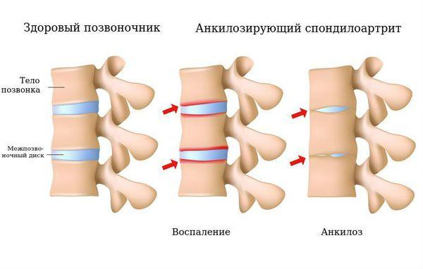 Здоровый позвоночник и анкилозирующий спондилоартрит