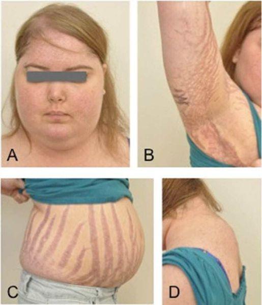 Ожирение — первый клинический признак болезни Иценко — Кушинга