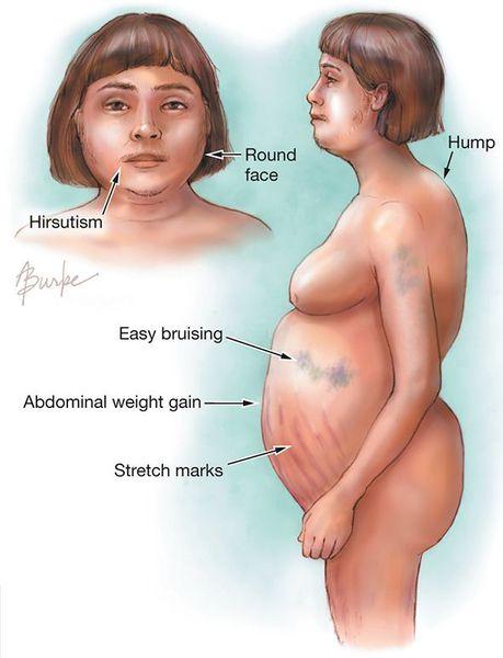 Женщина с симптомами болезни Иценко — Кушинга