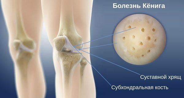 Разрушение субхондральной кости при болезни Кёнига
