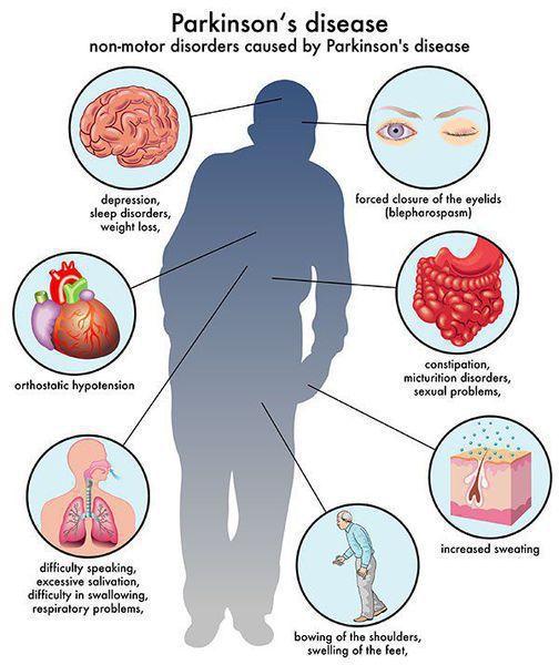 Расстройства, вызванные болезнью Паркинсона