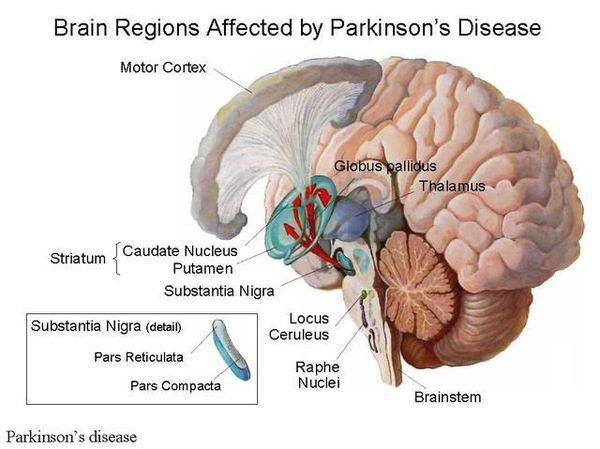 Области мозга, затронутые болезнью Паркинсона