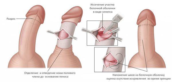 Боль под пенисом у основания