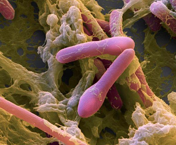Ботулотоксин при рассмотрении под микроскопом