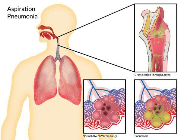 Признаки аспирационной пневмонии