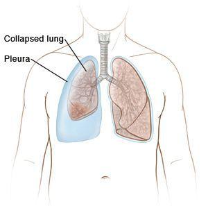 Уменьшение объёма лёгкого
