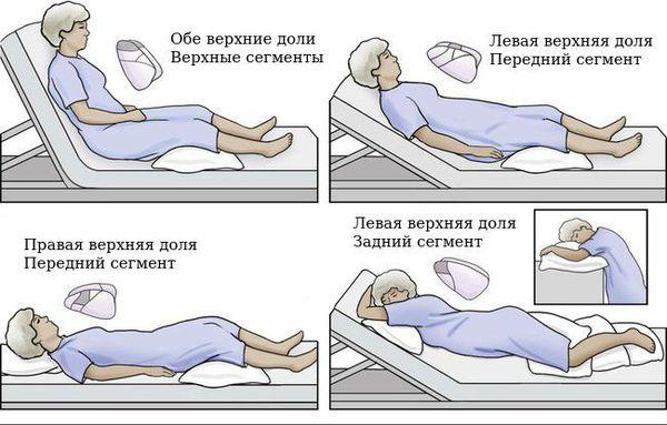 Постуральный дренаж при поражении разных сегментов лёгких