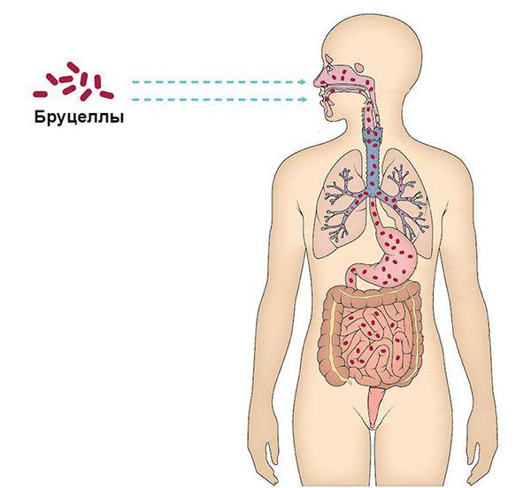 Входные ворота инфекции
