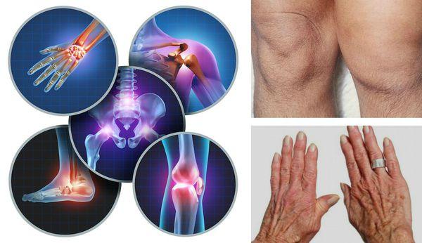 Воспаление суставов при бруцеллёзе