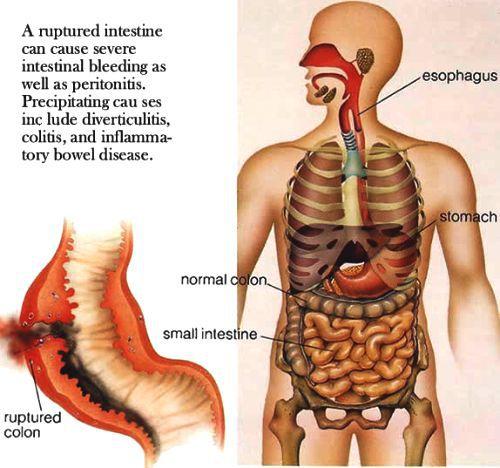 Перфорация кишечника