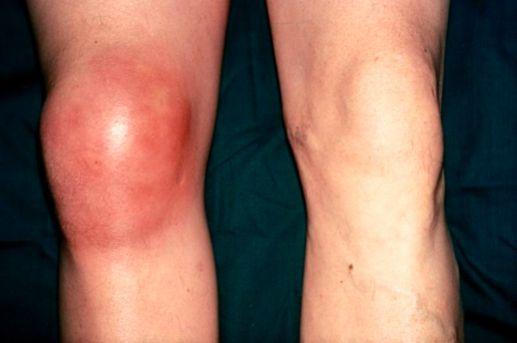 Проявление бурсита коленного сустава