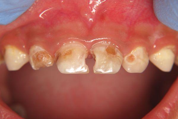 Бутылочный кариес на молочных зубах