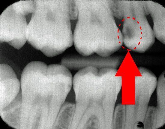 Кариозная полость на рентген-снимке