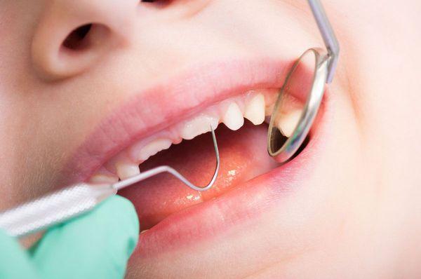 Зондирование зуба