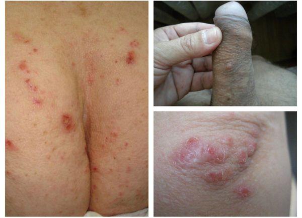 Скабиозная лимфоплазия