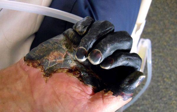 Гангрена пальцев руки