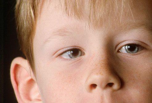 Отклонение глаза к носу
