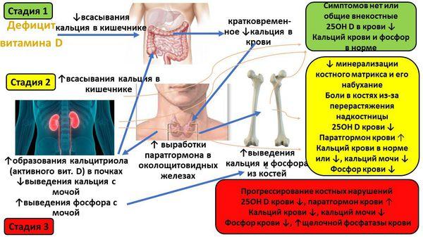 Механизм и этапы фoрмирования лабораторных изменений и костных нарушений при дефиците витамина D