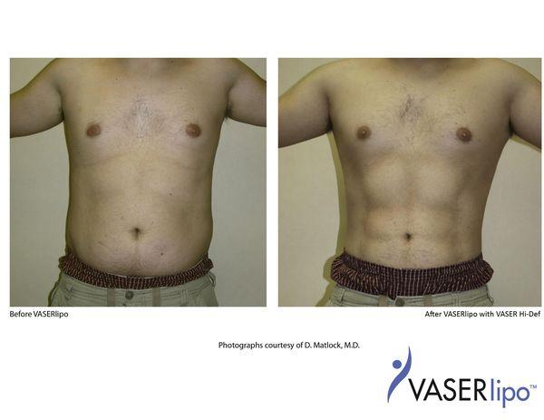 VASERlipo (липосакция)