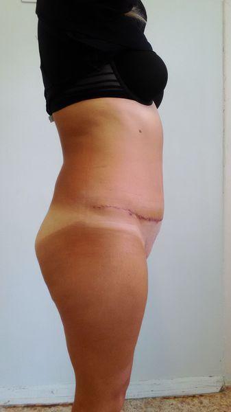 Абдоминопластика (через 14 дней после операции)