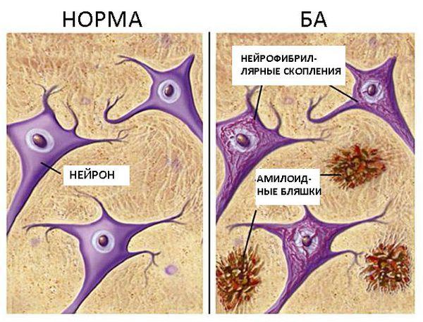 Деменция при болезни Альцгеймера