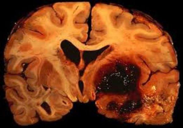 Ишемическое и геморрагическое поражение мозга на макропрепарате