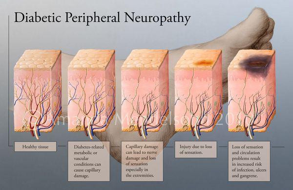 Этапы развития диабетической нейропатии