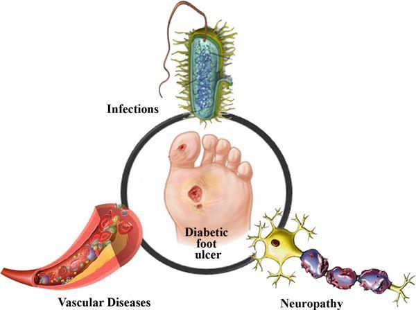 Причины развития диабетической стопы
