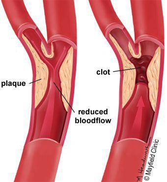 Стеноз и закупорка артерий