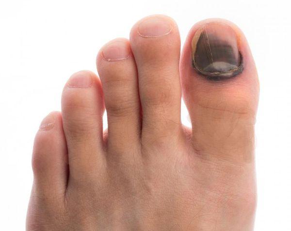 Возникновение синяков под ногтями