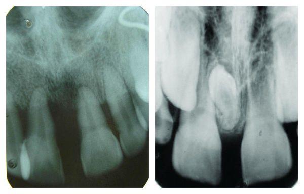 Диастема на рентгенограмме